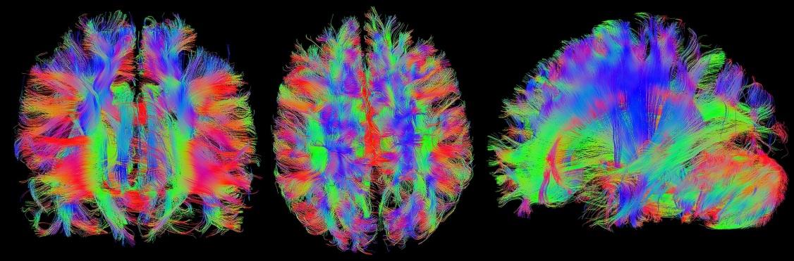 brain-1728449